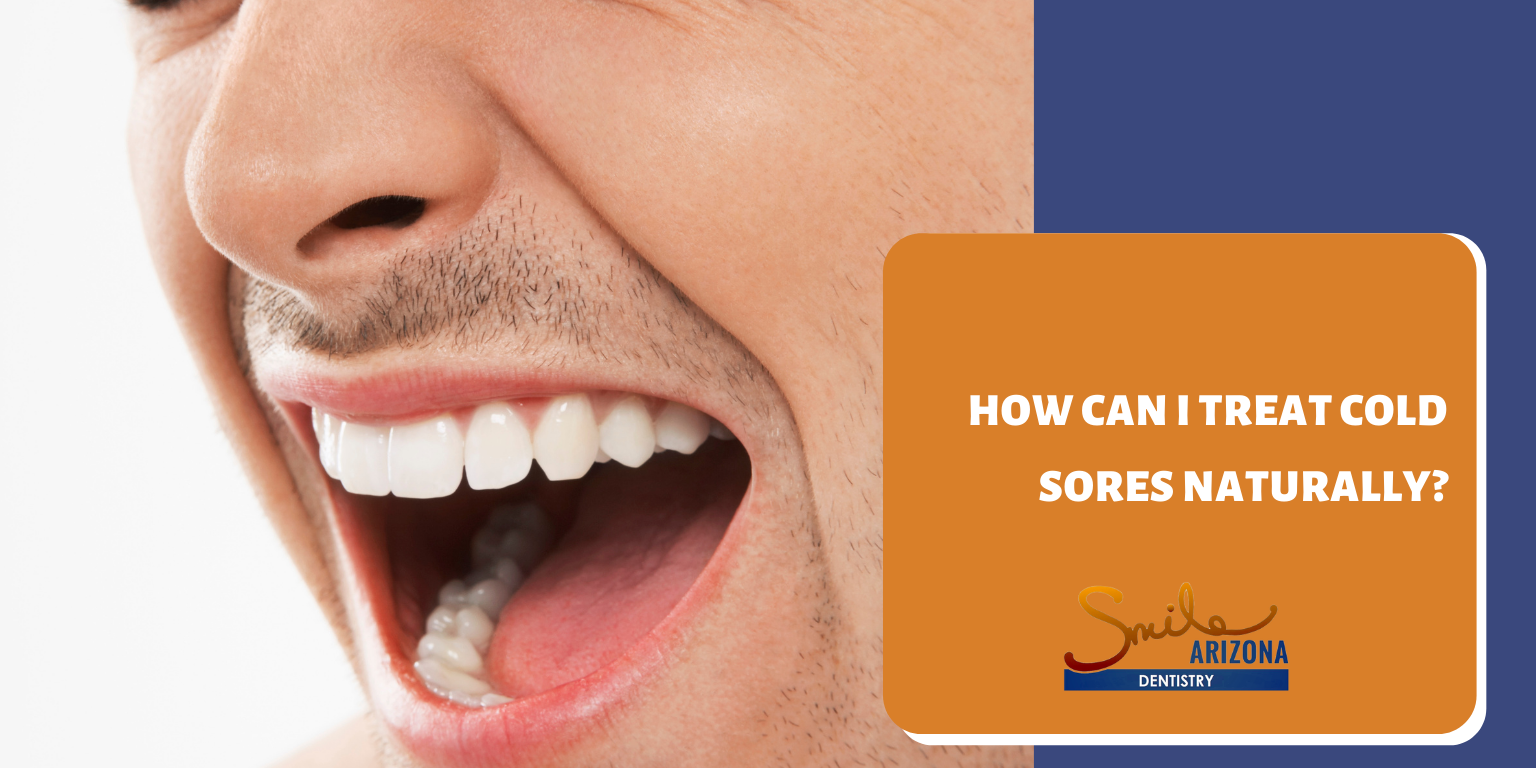How Can I Treat Cold Sores Naturally?