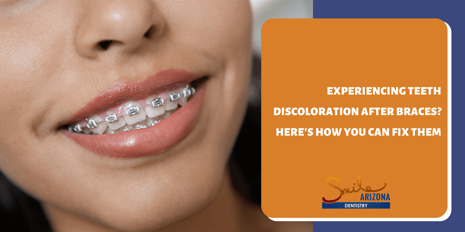 Experiencing Teeth Discoloration After Braces? Here's How You Can Fix Them