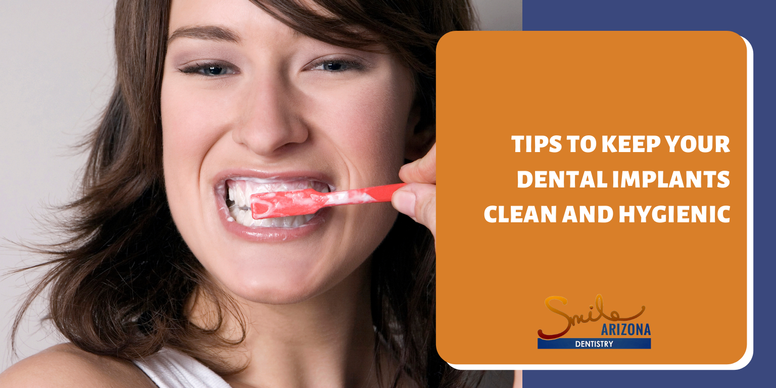 Tips to Keep Your Dental Implants Clean and Hygienic