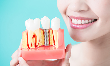 Girl holding dental implant model