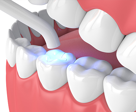 3d render of jaw with dental polymerization lamp and light cured inlay filling